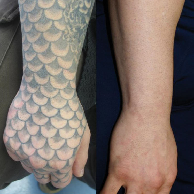 Impressive 'before and after' of a removed tattoo on the hands, wrists and forearm by TattooClear.