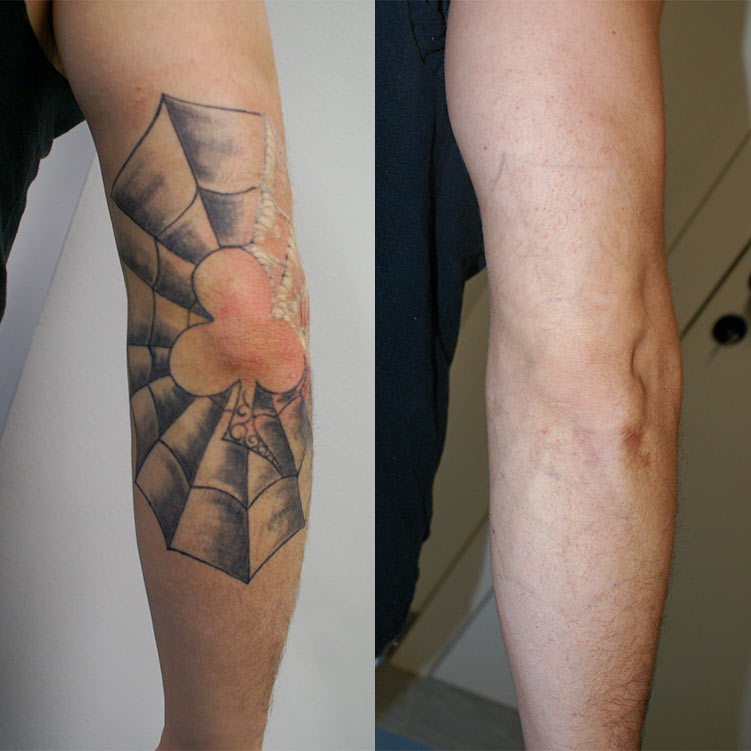 This tattoo on the elbow was completely removed after eight sessions with clean and smooth skin as a result.